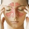 Как лечить синусит естественным образом?