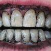 Рецепт отбеливания зубов активированным углем